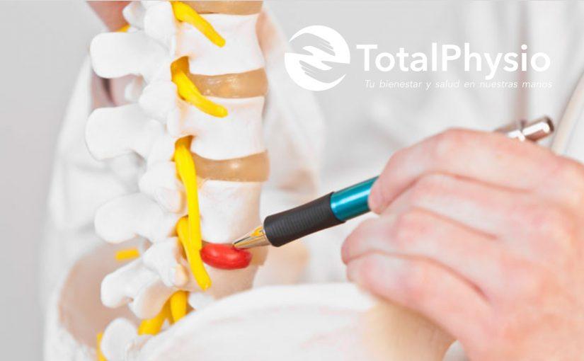 ¿Qué son las hernias discales?