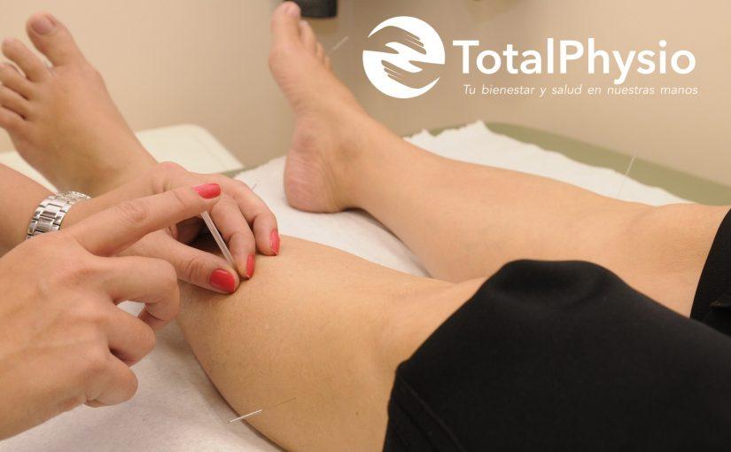 Acupuntura y Fisioterapia para el tratamiento del dolor