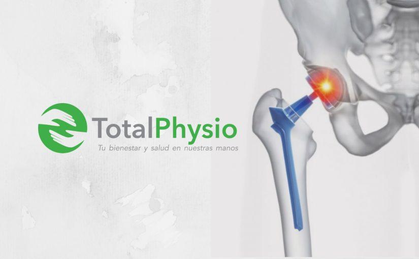 Fisioterapia en prótesis de cadera posterior