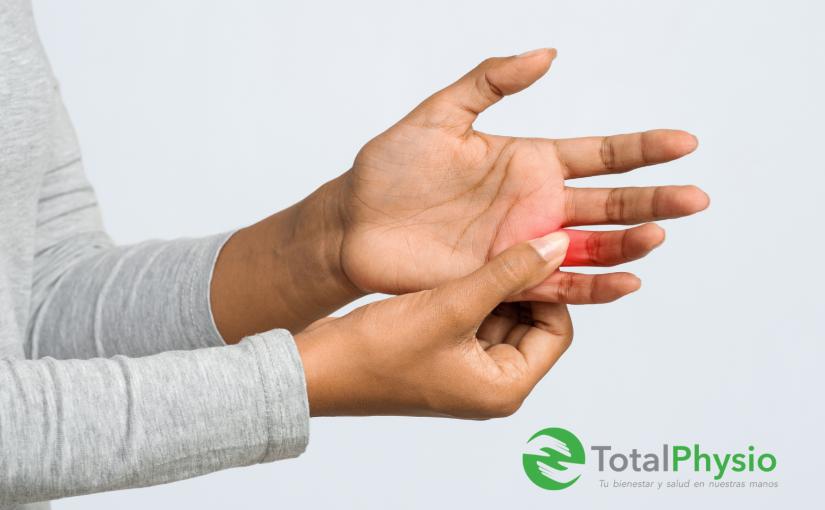 Fisioterapia en dedo en gatillo en mano